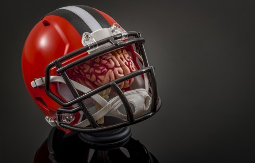Football helmet over brain: concussions and head injuries
