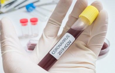 Coronavirus / COVID-19 blood test tube