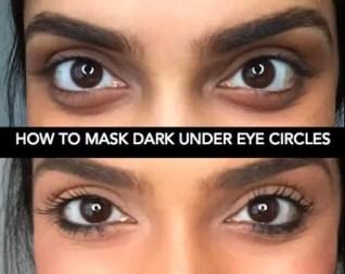 darkcircles2