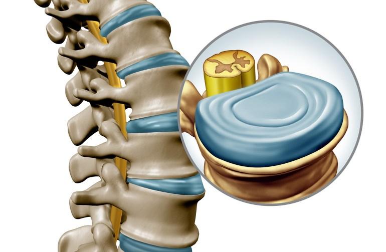 Schematisk bild på hur ryggraden, disken och nerverna ser ut
