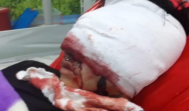Joven resultó herido en protestas en Suba, se encuentra hospitalizado, busca ayuda económica