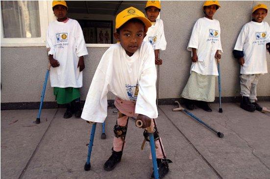 """""""الصحة العالمية"""" تحذر من انتشار شلل الأطفال الجامح بالسودان بسبب اللاجئين"""