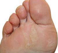 foot callus peel