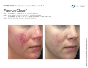 ForeverClear Before/After 1