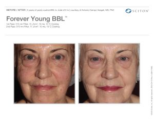 ForeverYoung Before/After 2