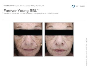 ForeverYoung Before/After 3