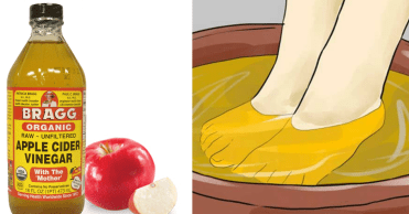 Image result for soak feet in apple cider vinegar