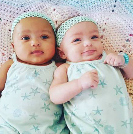 twins born different color skin
