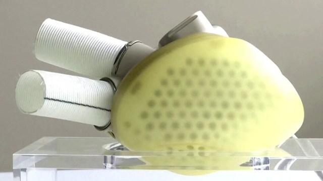 Carmat artificial heart