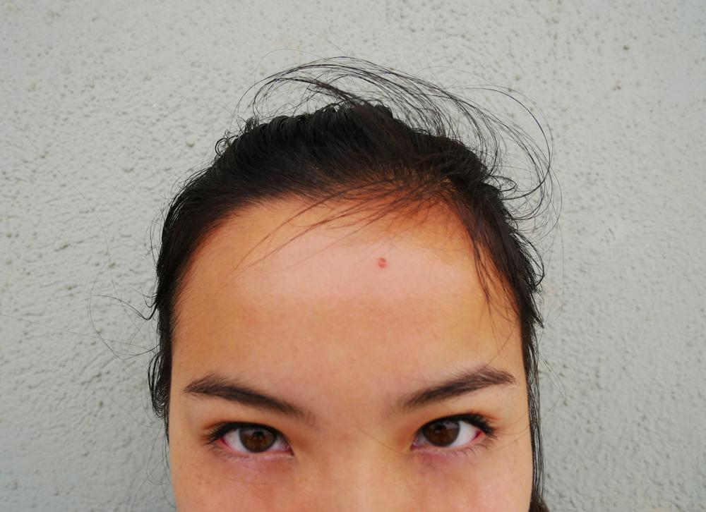 Meiflowers: Pimples