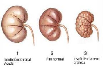 insuficiencia renal caes