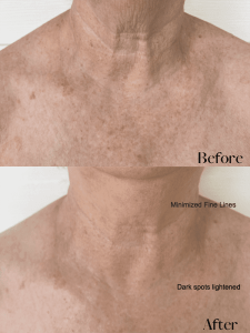 Linda Décolletage before and after