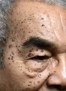 Skin Condition Dermatosis Papulosa Nigra (DPN)