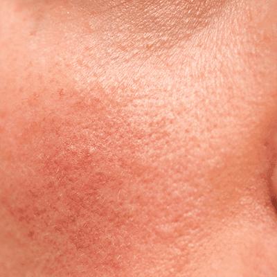 Redness/Sensitive/Fragile Skin