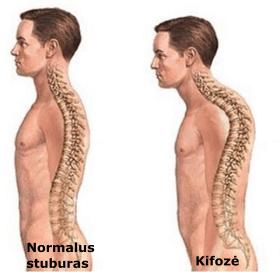 stuburo iskrypimas; kupra; nugaros skausmas
