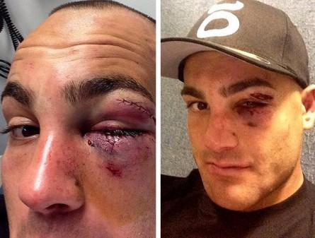 Eddie Alvarez após luta contra Chandler