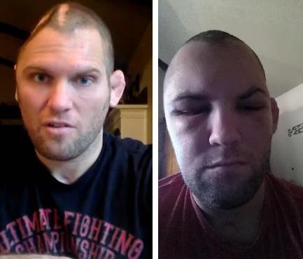M. Grice antes (esq.) e depois (dir.) da cranioplastia. Foto: Produção MMA PRESS (MMA Fighting/Twitter)