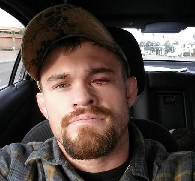 D. Cruickshank postou a mensagem a caminho do hospital para a cirurgia no olho