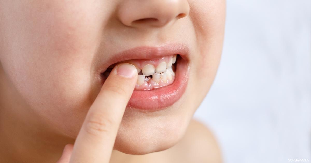 متى يبدأ تبديل الأسنان عند الأطفال سوبر ماما