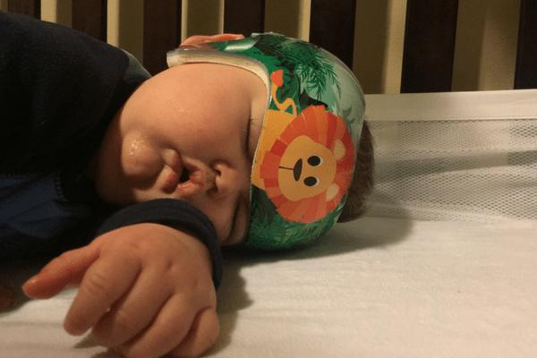 sleeping baby cranial helmet