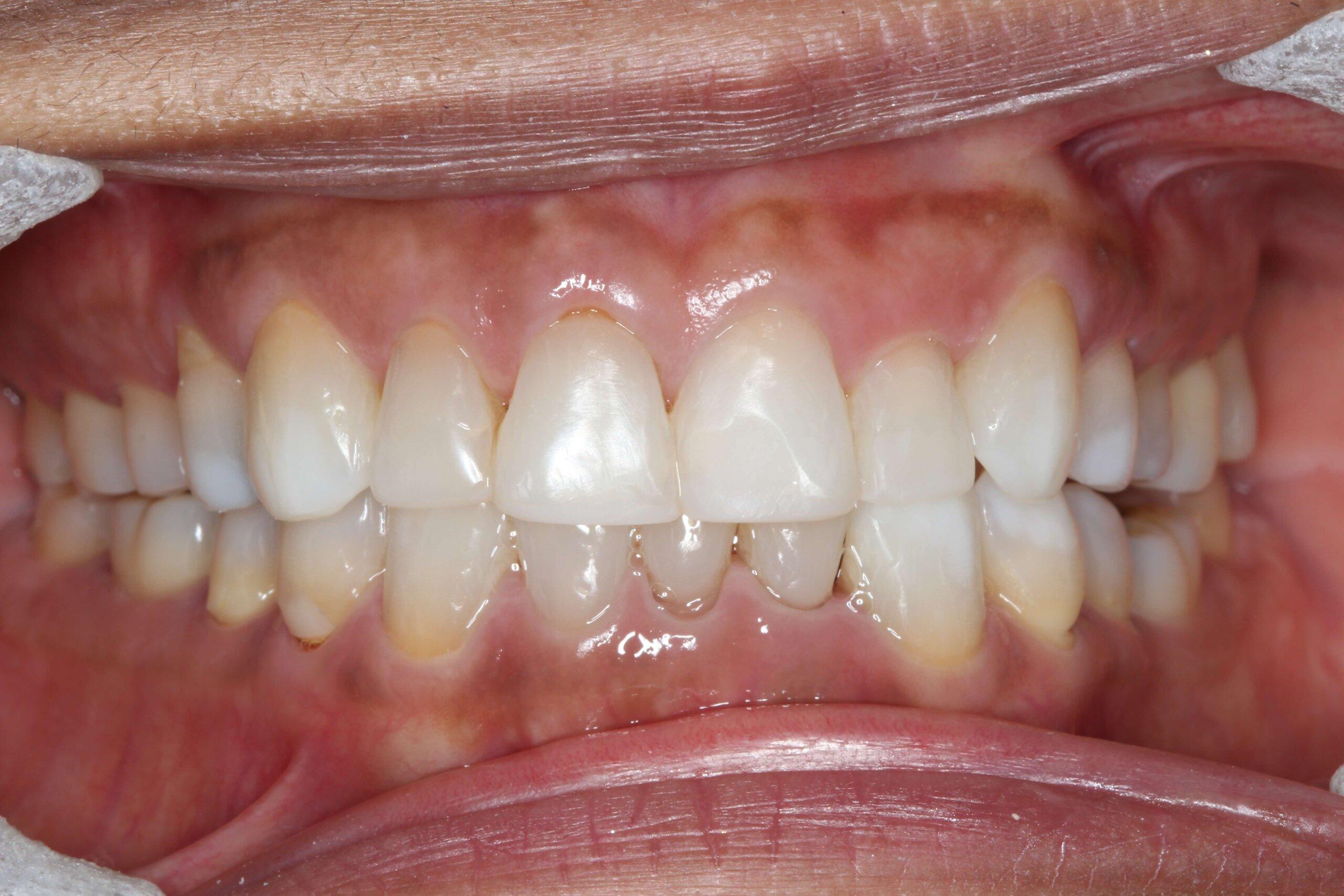 Case 7 (After) treating at Surbiton Dental