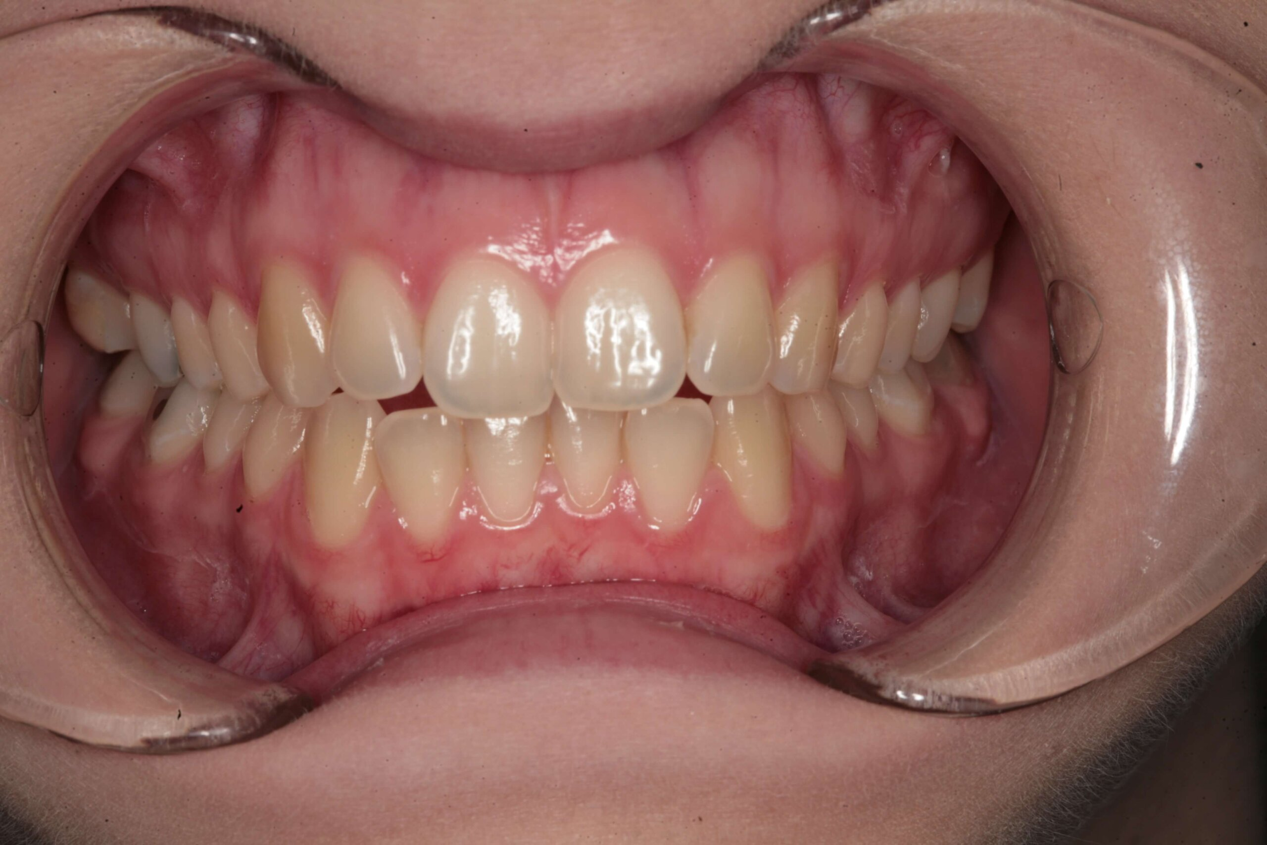 Case 1 (Before) treating at Surbiton Dental