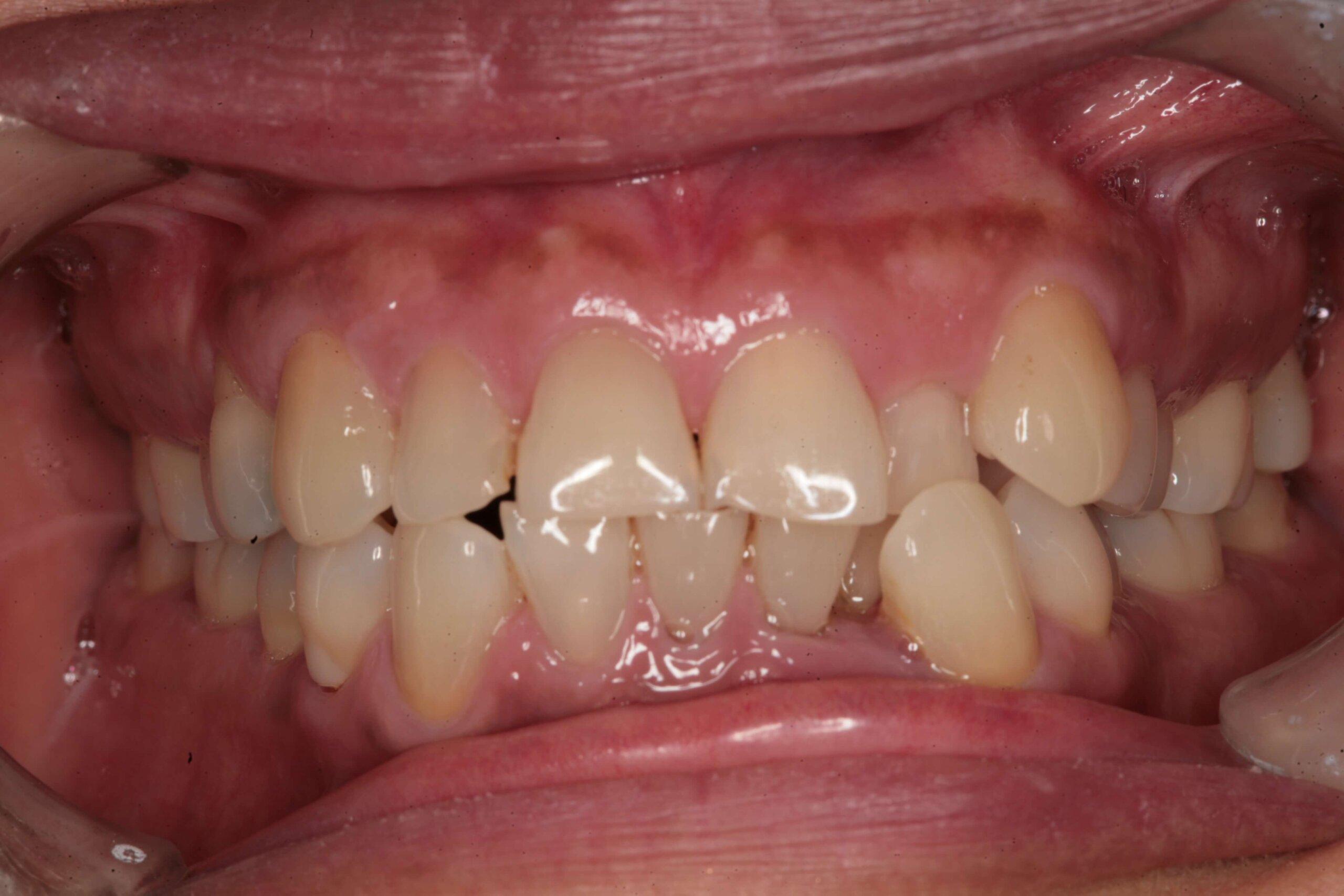 Case 7 (Before) treating at Surbiton Dental
