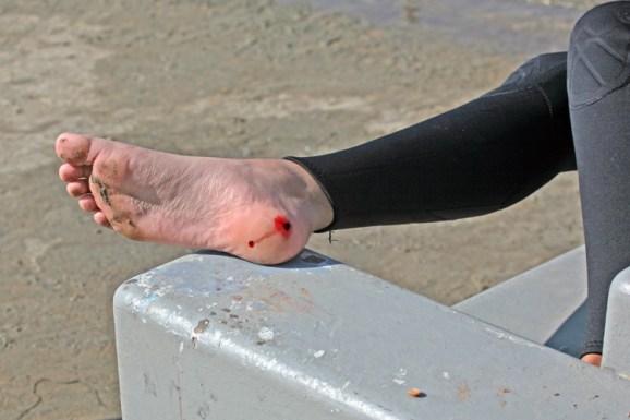 Image result for stingray sting