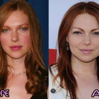 Laura Prepon Plastic Surgery Before After, Breast Implants