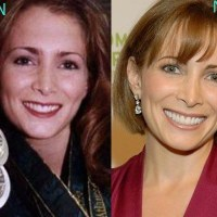 Shannon Miller Plastic Surgery Before After, Breast Implants