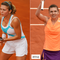 Simona Halep Plastic Surgery Before After, Breast Implants
