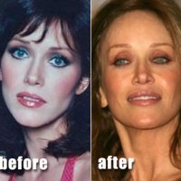 Tanya Roberts Plastic Surgery Before After, Breast Implants