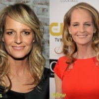 Helen Hunt Plastic Surgery Before After, Breast Implants