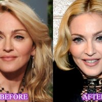 Madonna Plastic Surgery Before After, Breast Implants