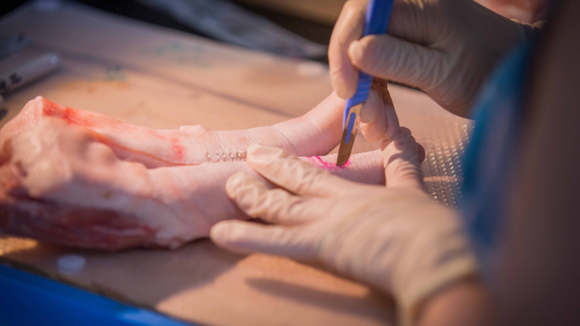 New Course: Hand Trauma