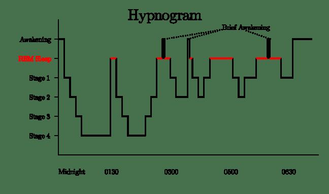 Wiki Sleep_Hypnogram