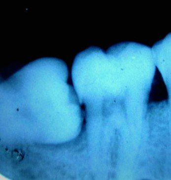 impacted teeth x ray