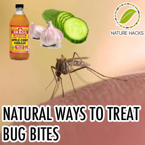 natural-ways-to-treat-bug-bites