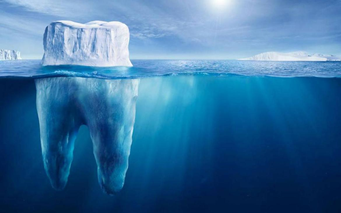 dental anxiety for survivors