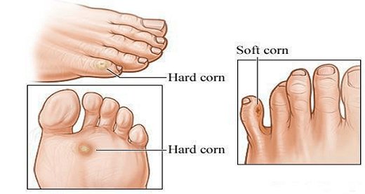 Drawing of different types of corns