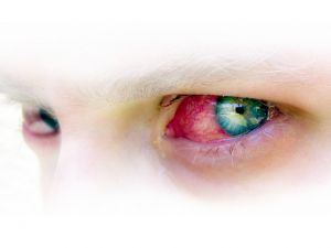 conjunctivitis photo on post at Holy in the Daily