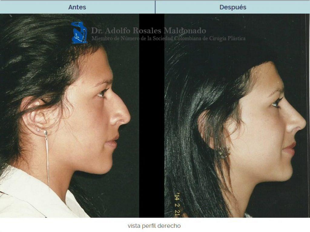 Cirugia plastica colombia antes y despues de adelgazar