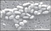 "Slika GFAJ-1 ""hranjenog"" arsenom"