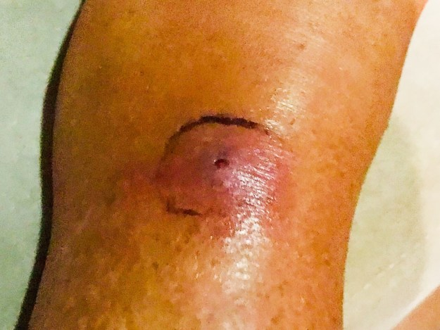 Initial bite, starting to get infected