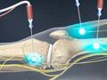 Genicular Nerve Ablation (RF Neurotomy)