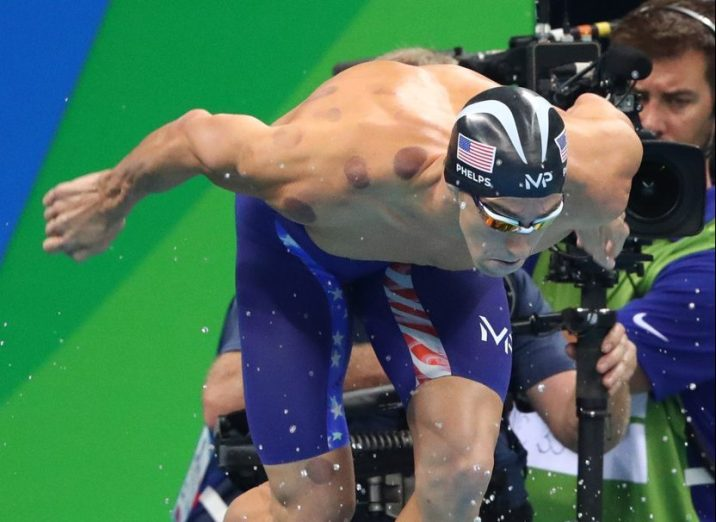 phelps-cupping-bruises-start-rio-2016