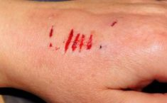 hand bleeding