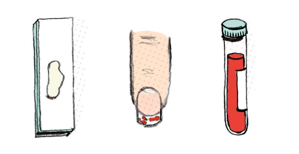 medical illustration. finger.blood.specimen. sylviastolan