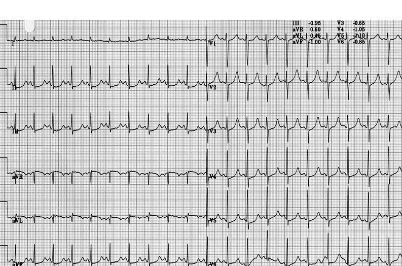 long-QT syndrome effort ECG