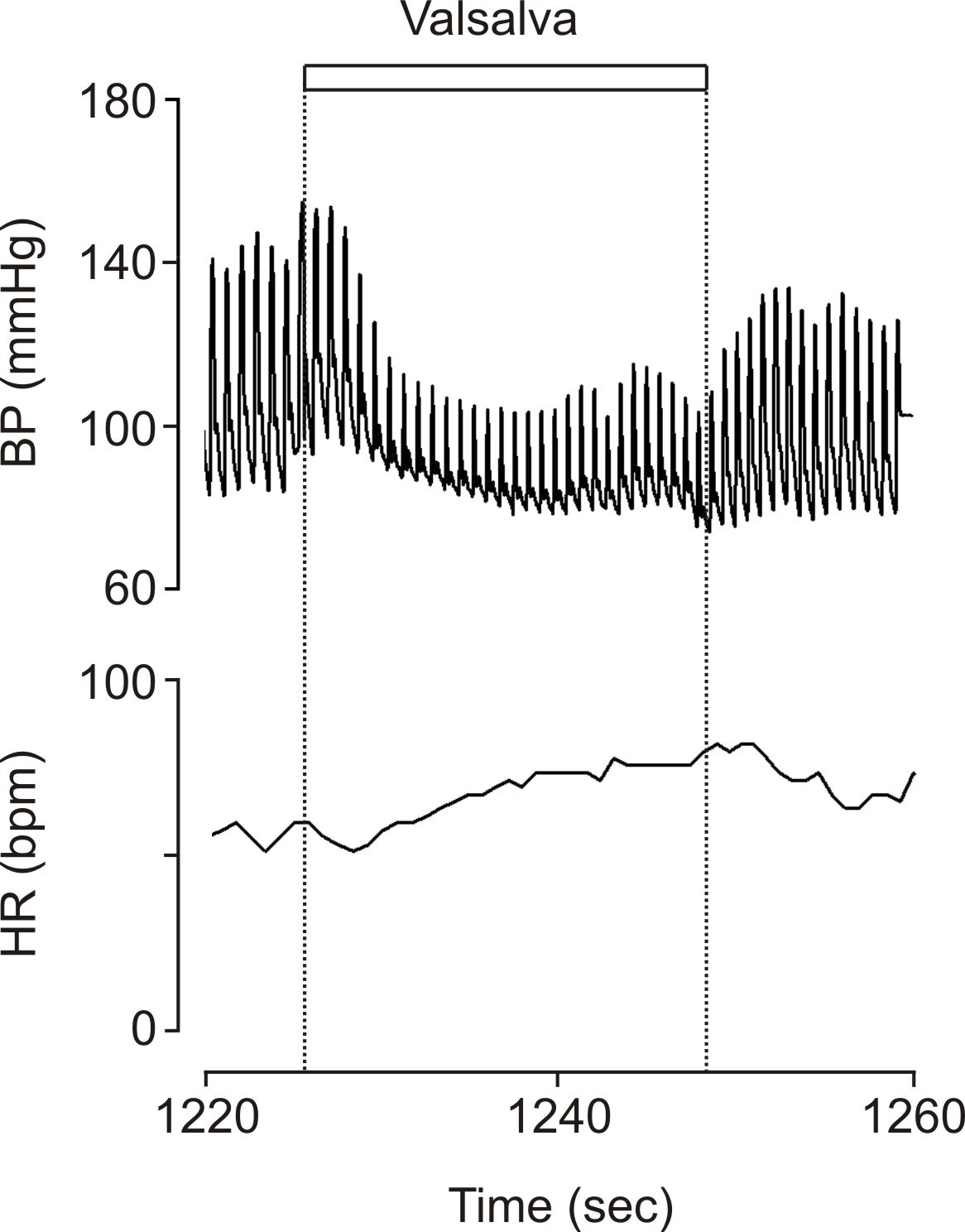 Valsalva manoeuvre blood pressure legionella